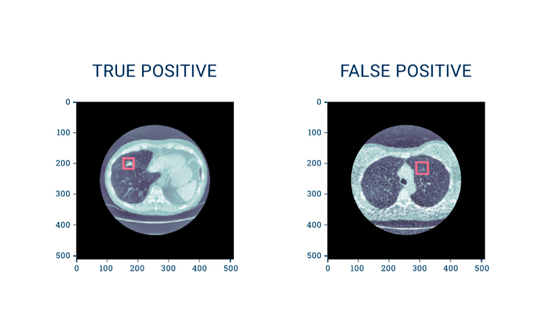 Medical Image Processing: True positives and false positives detected on CT scans